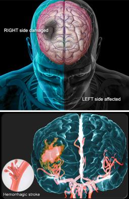 stroke-brain